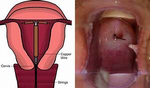 Fitting An Intrauterine Device Or Intrauterine System
