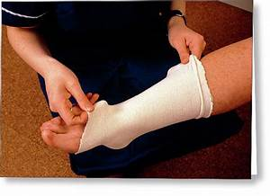 First Aid Wrap Sprained Ankle