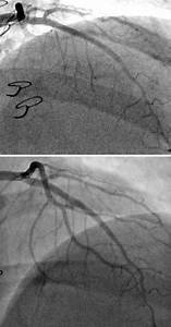 Intimal Thickening In Cardiac Allograft Vasculopathy And